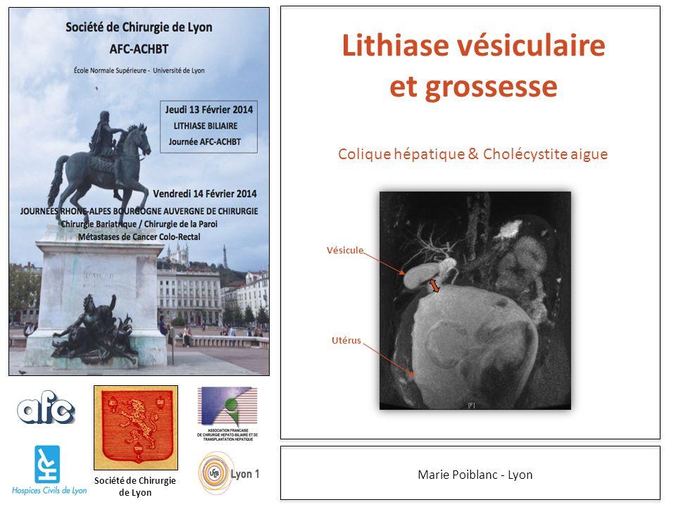 Société de Chirurgie de Lyon Marie Poiblanc - Lyon Lithiase vésiculaire et grossesse Vésicule Utérus Colique hépatique & Cholécystite aigue