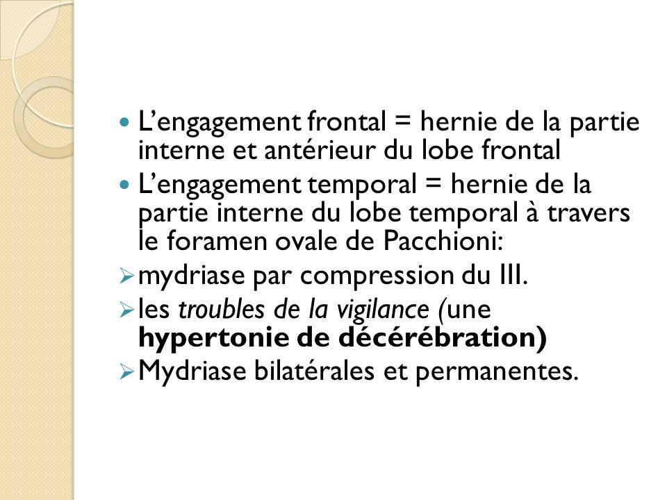 Lengagement frontal = hernie de la partie interne et antérieur du lobe frontal Lengagement temporal = hernie de la partie interne du lobe temporal à t