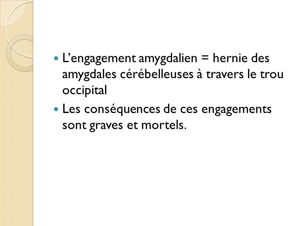 Lengagement amygdalien = hernie des amygdales cérébelleuses à travers le trou occipital Les conséquences de ces engagements sont graves et mortels.