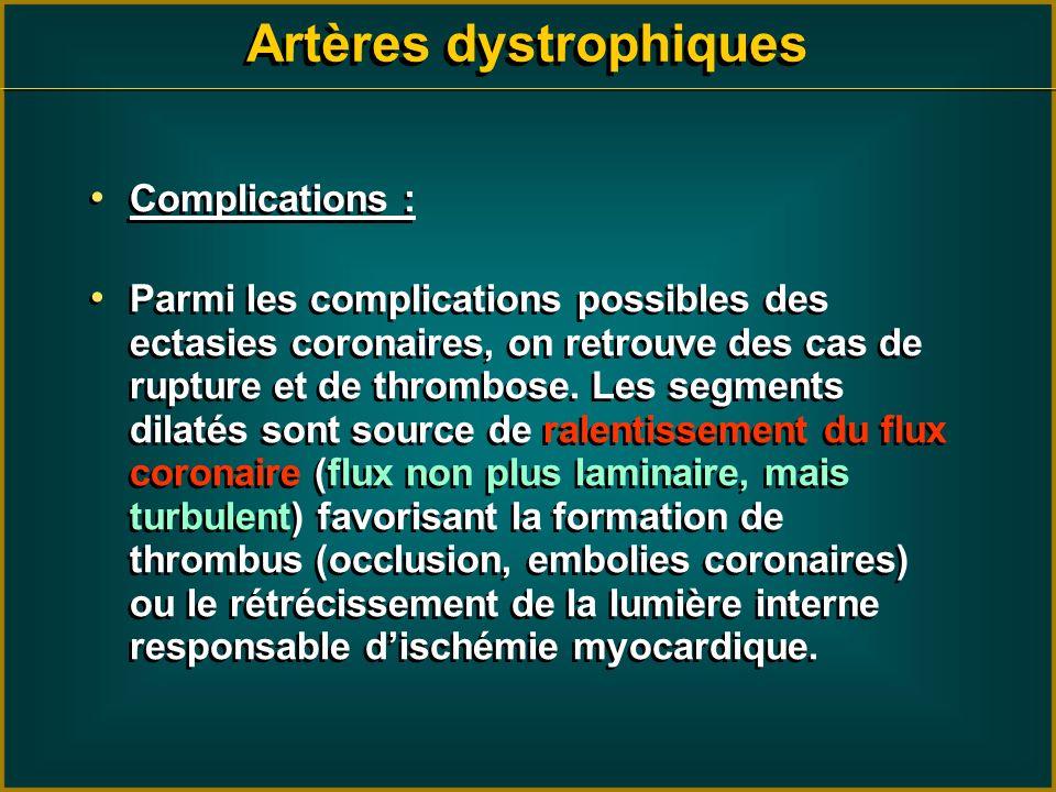 Artères dystrophiques Complications : Parmi les complications possibles des ectasies coronaires, on retrouve des cas de rupture et de thrombose. Les s