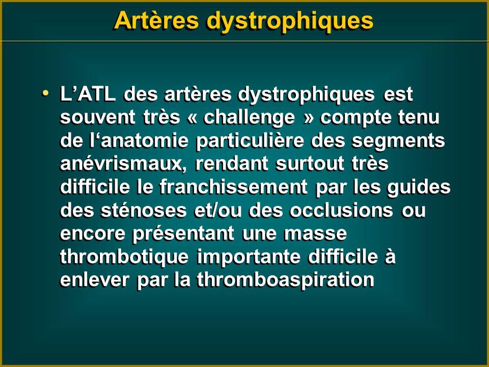 Artères dystrophiques LATL des artères dystrophiques est souvent très « challenge » compte tenu de lanatomie particulière des segments anévrismaux, re