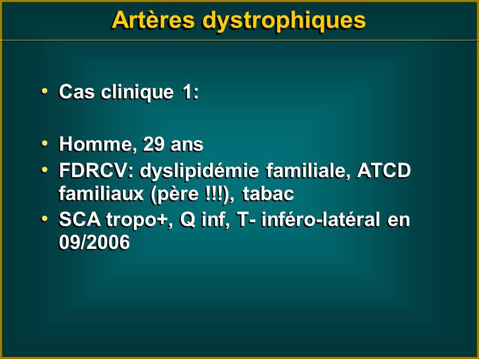 Artères dystrophiques Cas clinique 1: Homme, 29 ans FDRCV: dyslipidémie familiale, ATCD familiaux (père !!!), tabac SCA tropo+, Q inf, T- inféro-latér