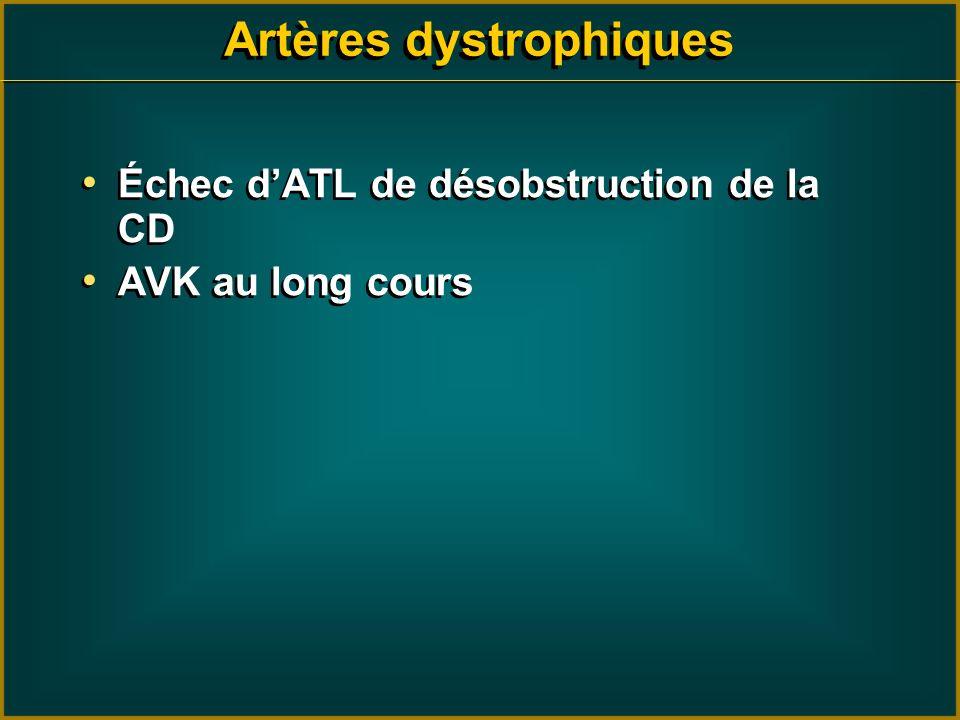 Échec dATL de désobstruction de la CD AVK au long cours Échec dATL de désobstruction de la CD AVK au long cours