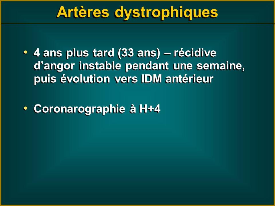 Artères dystrophiques 4 ans plus tard (33 ans) – récidive dangor instable pendant une semaine, puis évolution vers IDM antérieur Coronarographie à H+4