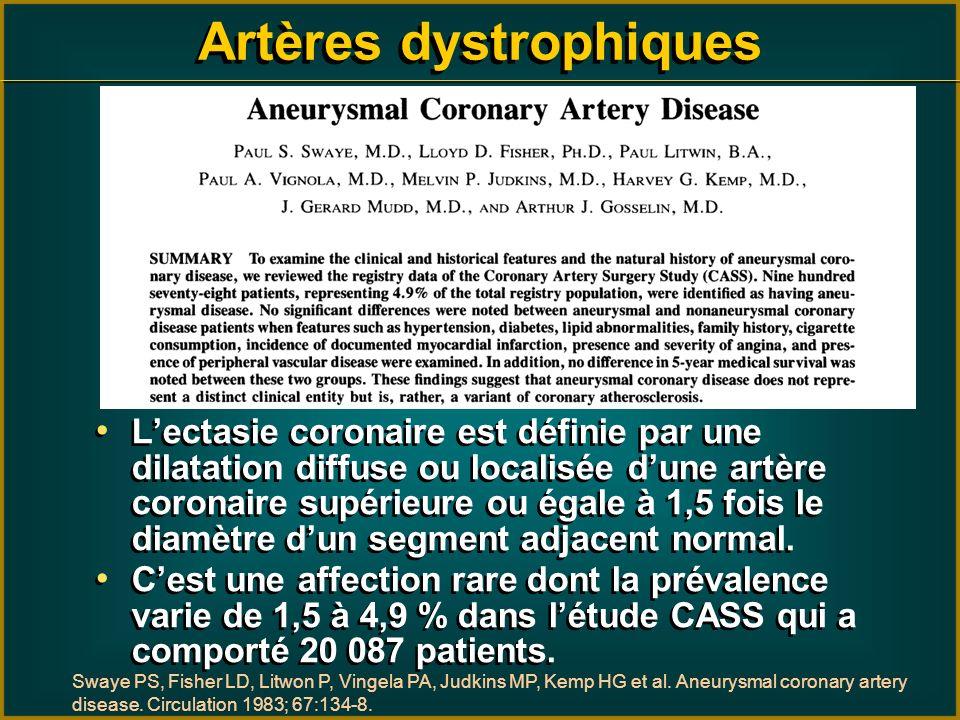 Lectasie coronaire est définie par une dilatation diffuse ou localisée dune artère coronaire supérieure ou égale à 1,5 fois le diamètre dun segment ad
