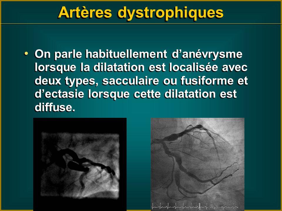 On parle habituellement danévrysme lorsque la dilatation est localisée avec deux types, sacculaire ou fusiforme et dectasie lorsque cette dilatation e
