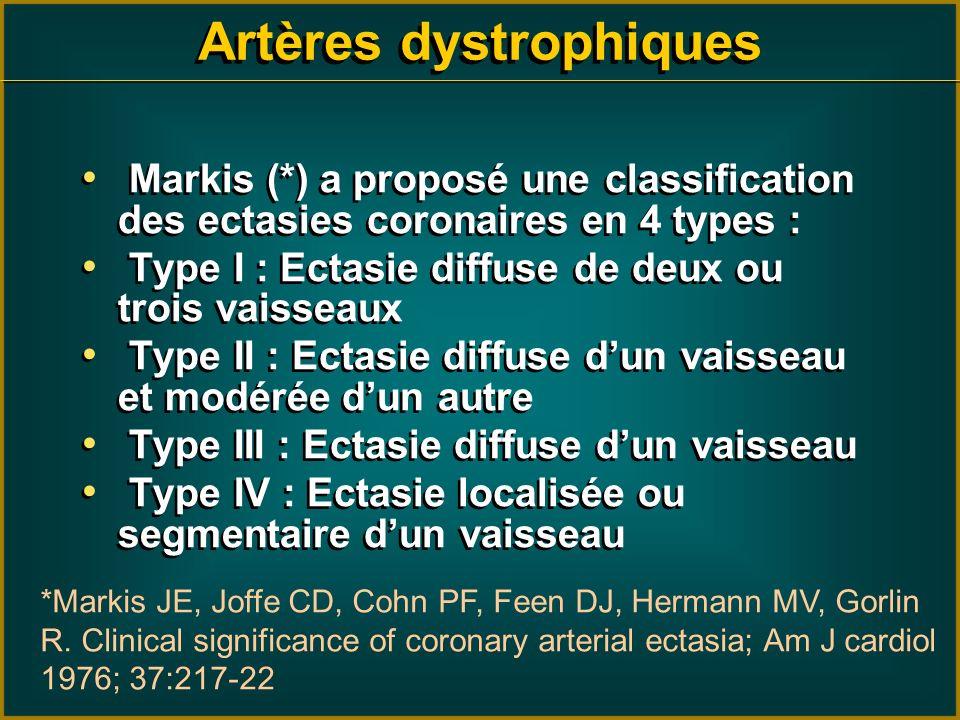 Markis (*) a proposé une classification des ectasies coronaires en 4 types : Type I : Ectasie diffuse de deux ou trois vaisseaux Type II : Ectasie dif