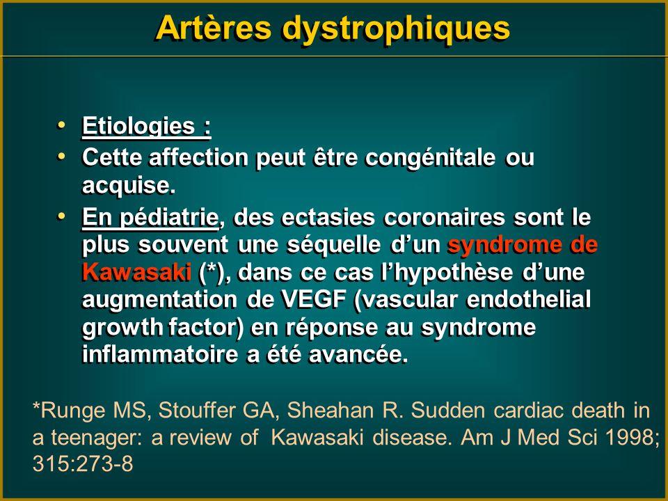 Artères dystrophiques Etiologies : Cette affection peut être congénitale ou acquise. En pédiatrie, des ectasies coronaires sont le plus souvent une sé
