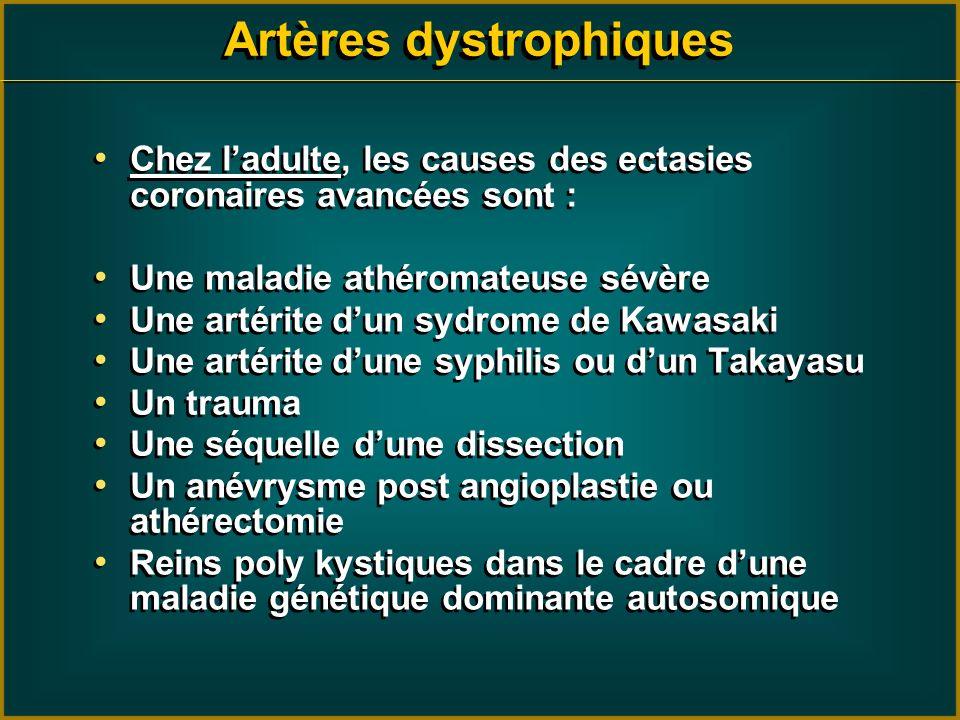 Artères dystrophiques Chez ladulte, les causes des ectasies coronaires avancées sont : Une maladie athéromateuse sévère Une artérite dun sydrome de Ka