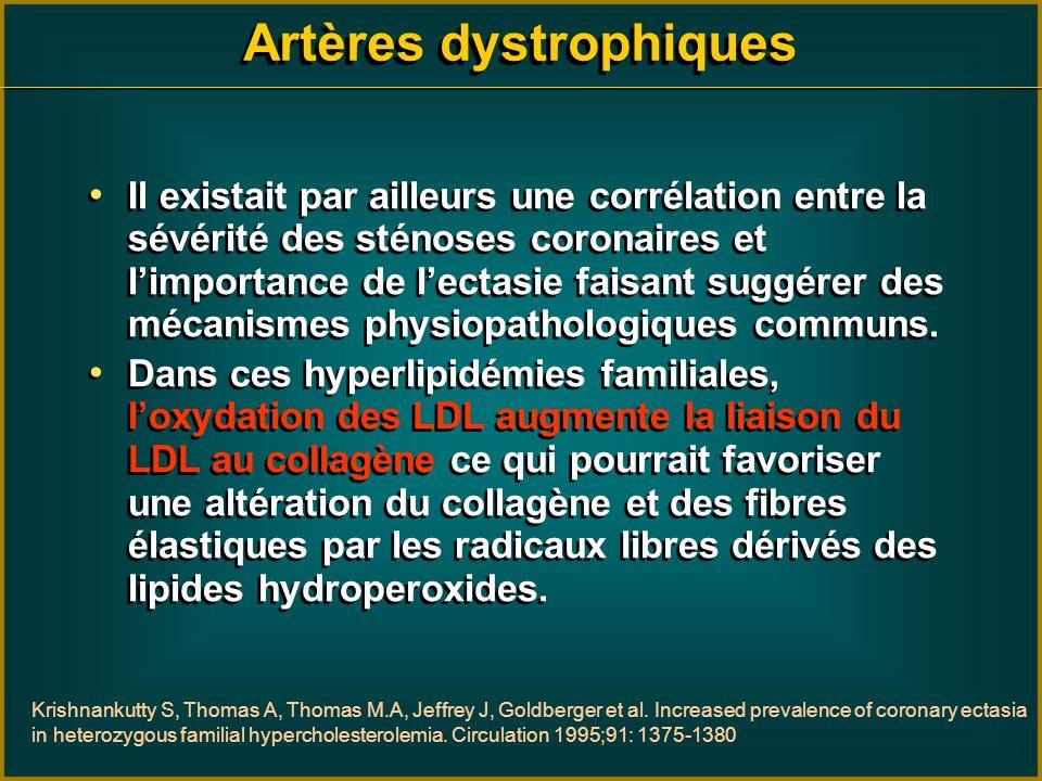 Artères dystrophiques Il existait par ailleurs une corrélation entre la sévérité des sténoses coronaires et limportance de lectasie faisant suggérer d
