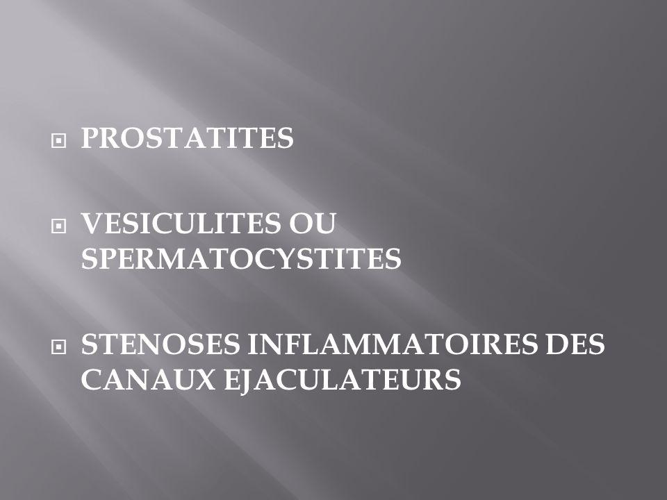 PROSTATITES VESICULITES OU SPERMATOCYSTITES STENOSES INFLAMMATOIRES DES CANAUX EJACULATEURS