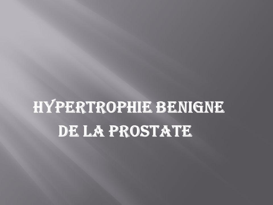 HYPERTROPHIE BENIGNE DE LA PROSTATE
