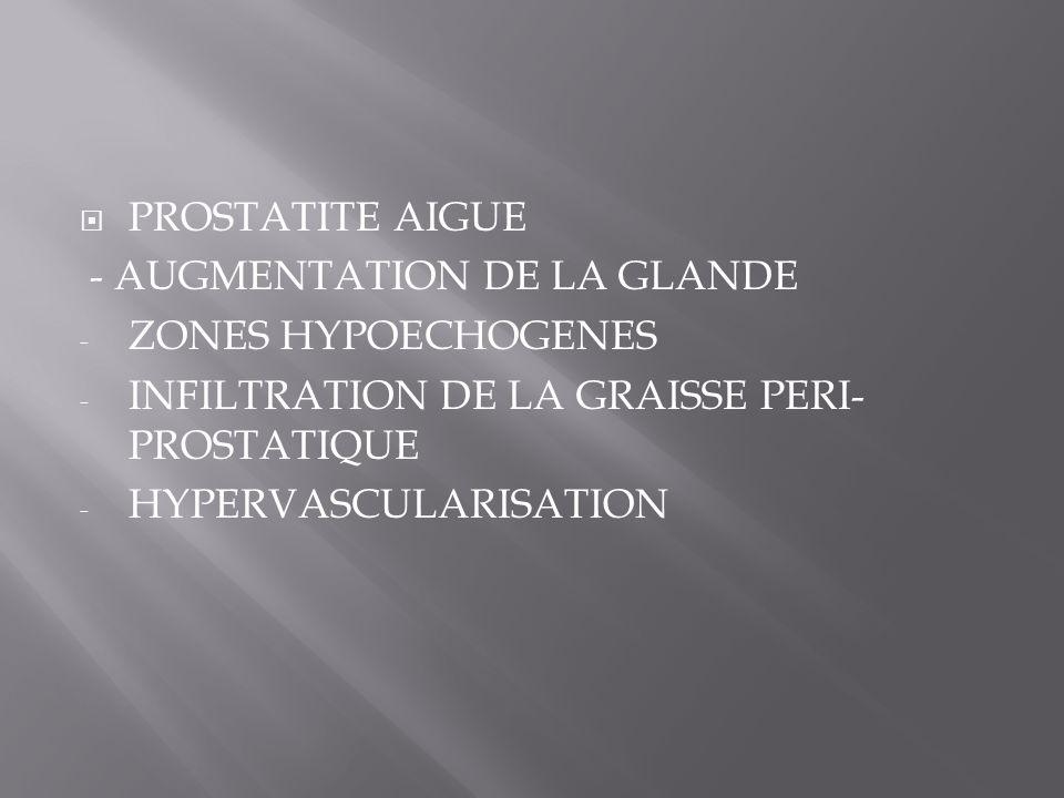 PROSTATITE AIGUE - AUGMENTATION DE LA GLANDE - ZONES HYPOECHOGENES - INFILTRATION DE LA GRAISSE PERI- PROSTATIQUE - HYPERVASCULARISATION