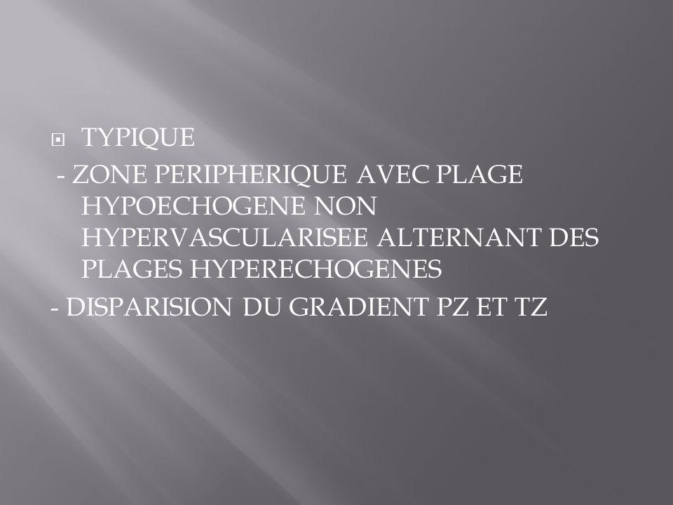 TYPIQUE - ZONE PERIPHERIQUE AVEC PLAGE HYPOECHOGENE NON HYPERVASCULARISEE ALTERNANT DES PLAGES HYPERECHOGENES - DISPARISION DU GRADIENT PZ ET TZ