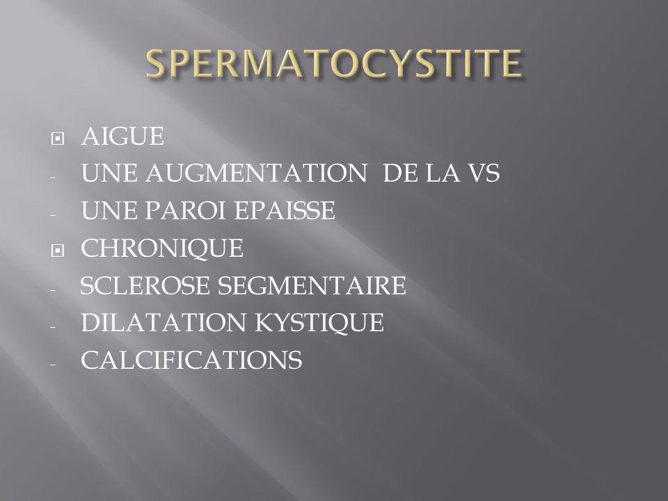 AIGUE - UNE AUGMENTATION DE LA VS - UNE PAROI EPAISSE CHRONIQUE - SCLEROSE SEGMENTAIRE - DILATATION KYSTIQUE - CALCIFICATIONS