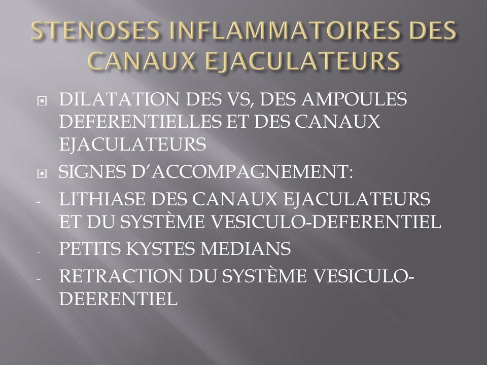 DILATATION DES VS, DES AMPOULES DEFERENTIELLES ET DES CANAUX EJACULATEURS SIGNES DACCOMPAGNEMENT: - LITHIASE DES CANAUX EJACULATEURS ET DU SYSTÈME VES