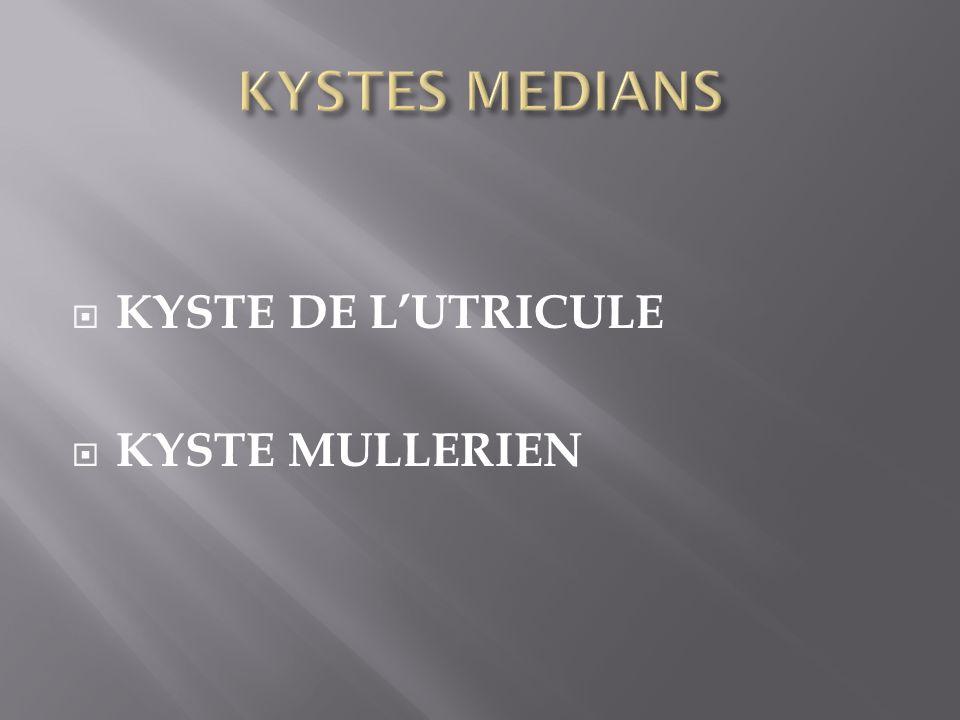 KYSTE DE LUTRICULE KYSTE MULLERIEN