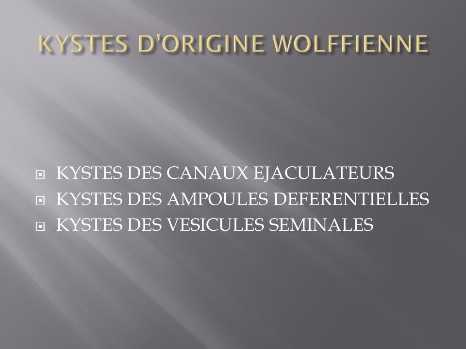 KYSTES DES CANAUX EJACULATEURS KYSTES DES AMPOULES DEFERENTIELLES KYSTES DES VESICULES SEMINALES