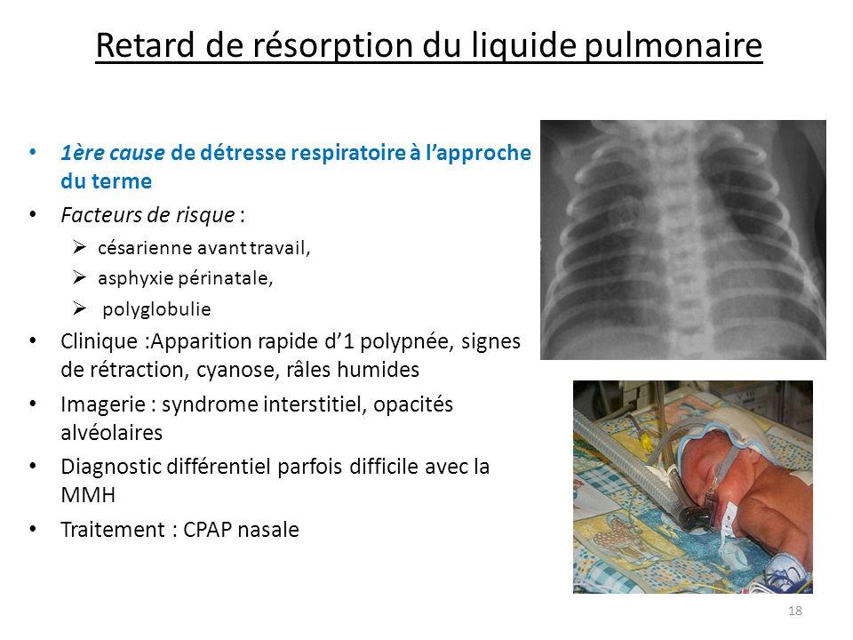 Retard de résorption du liquide pulmonaire 1ère cause de détresse respiratoire à lapproche du terme Facteurs de risque : césarienne avant travail, asp