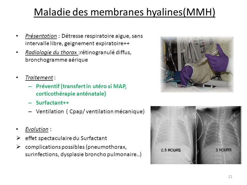 Maladie des membranes hyalines(MMH) Présentation : Détresse respiratoire aigue, sans intervalle libre, geignement expiratoire++ Radiologie du thorax :