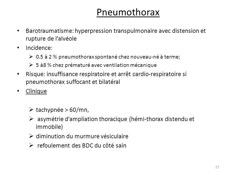 Pneumothorax Barotraumatisme: hyperpression transpulmonaire avec distension et rupture de lalvéole Incidence: 0.5 à 2 % pneumothorax spontané chez nou