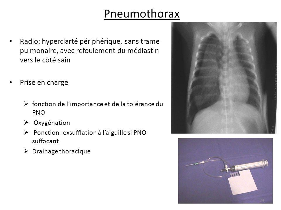 Pneumothorax Radio: hyperclarté périphérique, sans trame pulmonaire, avec refoulement du médiastin vers le côté sain Prise en charge fonction de limpo