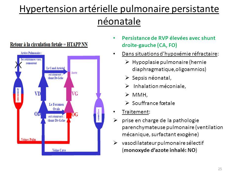 Hypertension artérielle pulmonaire persistante néonatale Persistance de RVP élevées avec shunt droite-gauche (CA, FO) Dans situations dhypoxémie réfra