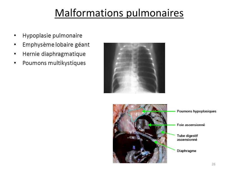 Malformations pulmonaires Hypoplasie pulmonaire Emphysème lobaire géant Hernie diaphragmatique Poumons multikystiques 26