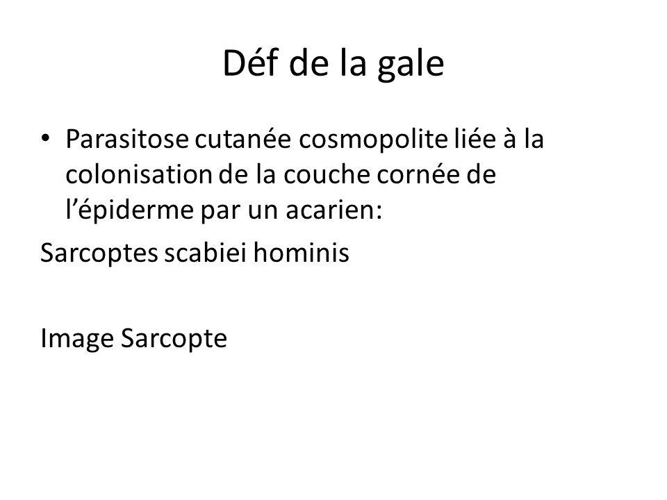 Déf de la gale Parasitose cutanée cosmopolite liée à la colonisation de la couche cornée de lépiderme par un acarien: Sarcoptes scabiei hominis Image