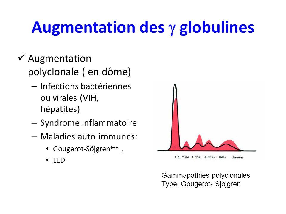 Augmentation des globulines Augmentation polyclonale ( en dôme) – Infections bactériennes ou virales (VIH, hépatites) – Syndrome inflammatoire – Maladies auto-immunes: Gougerot-Söjgren +++, LED Gammapathies polyclonales Type Gougerot- Sjöjgren