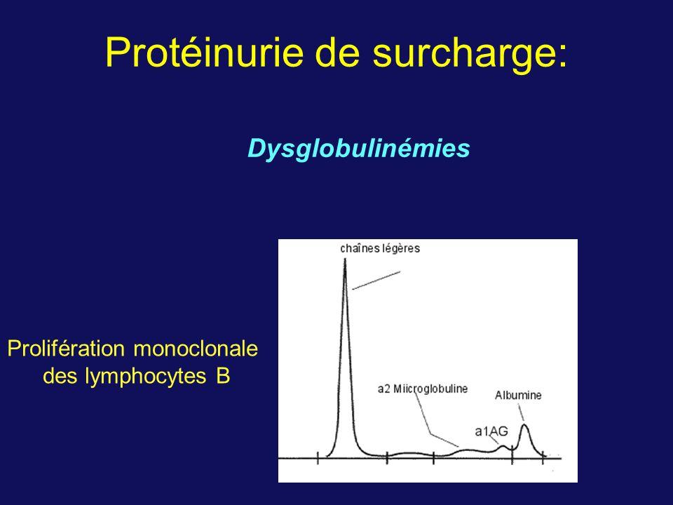 Protéinurie de surcharge: Prolifération monoclonale des lymphocytes B Dysglobulinémies