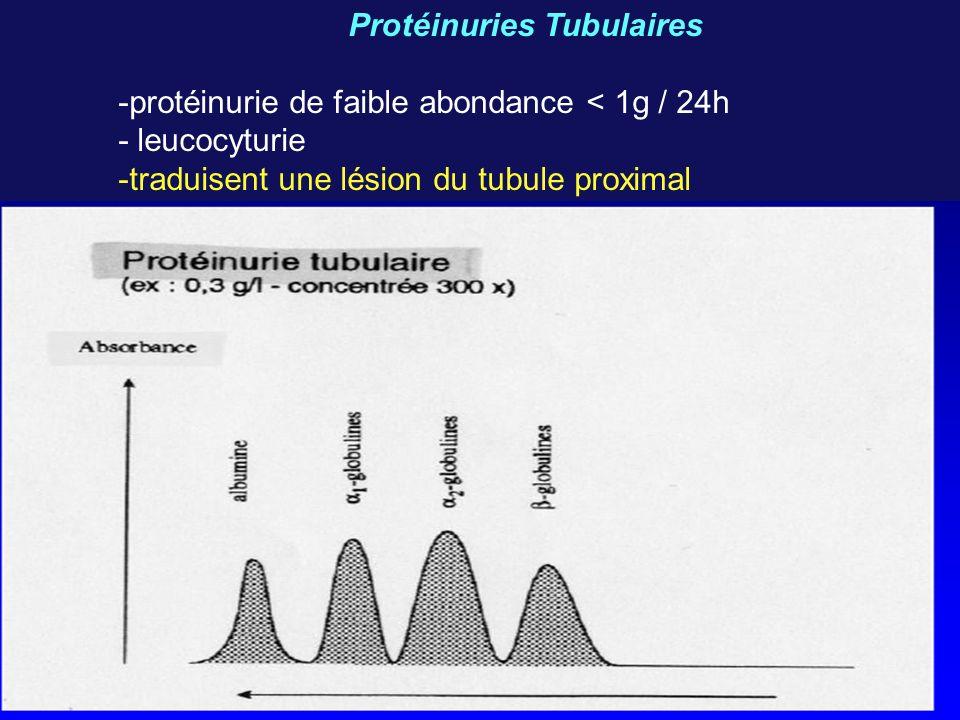 Protéinuries Tubulaires -protéinurie de faible abondance < 1g / 24h - leucocyturie -traduisent une lésion du tubule proximal