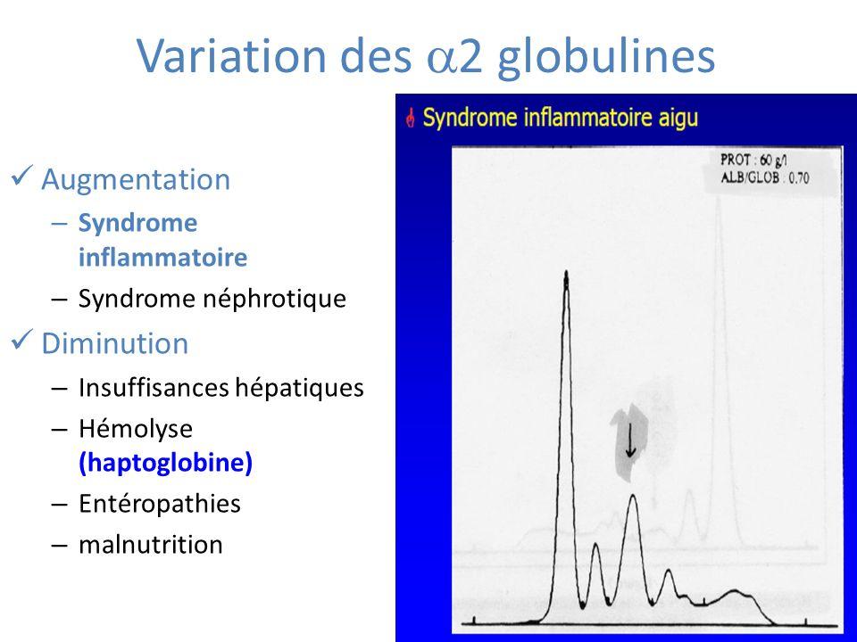 Variation des 2 globulines Augmentation – Syndrome inflammatoire – Syndrome néphrotique Diminution – Insuffisances hépatiques – Hémolyse (haptoglobine) – Entéropathies – malnutrition