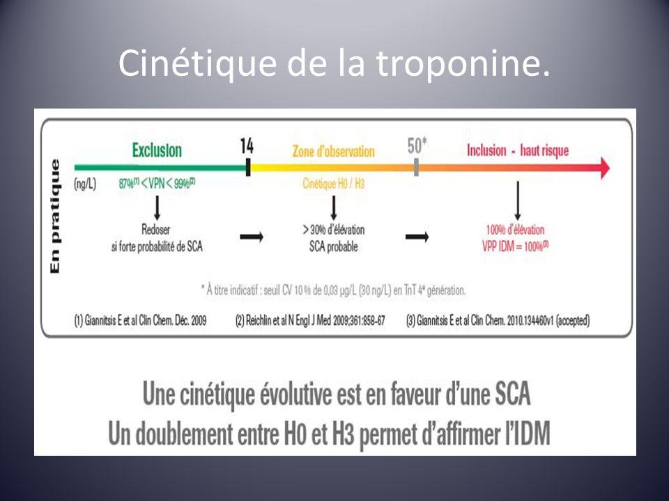 Cinétique de la troponine.