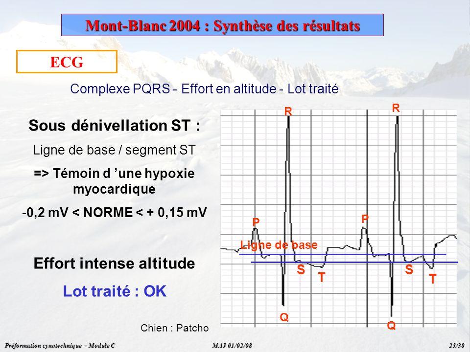 ECG Sous dénivellation ST : Ligne de base / segment ST => Témoin d une hypoxie myocardique - -0,2 mV < NORME < + 0,15 mV Effort intense altitude Lot t
