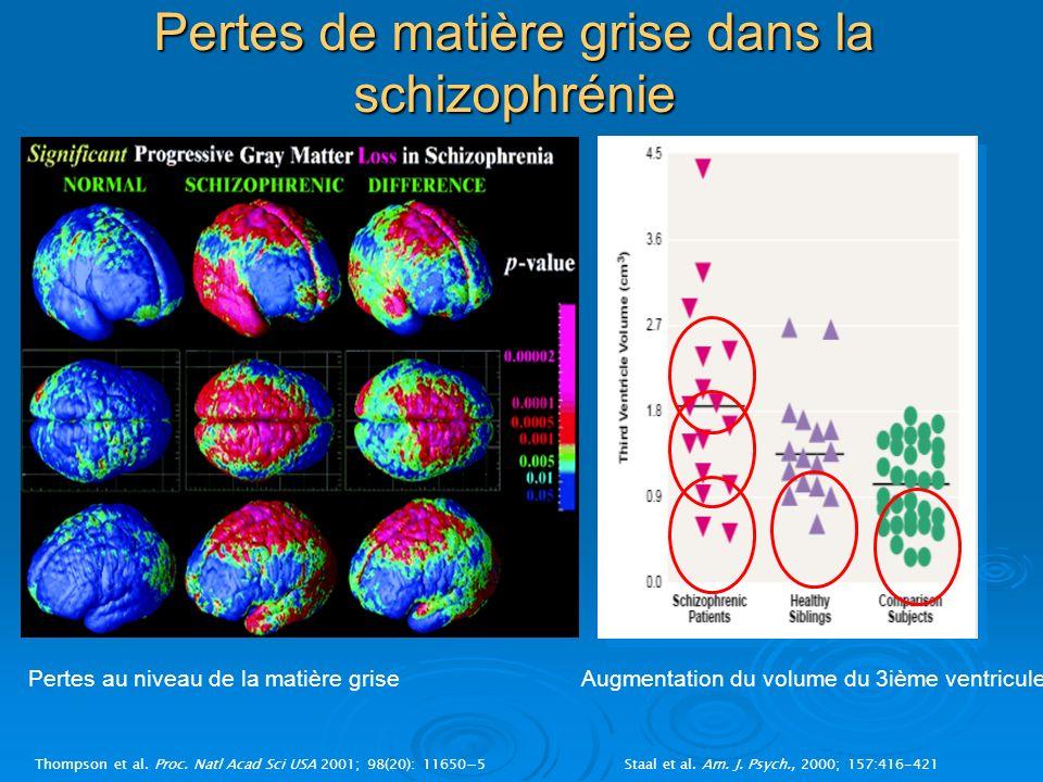 Pertes de matière grise dans la schizophrénie Thompson et al. Proc. Natl Acad Sci USA 2001; 98(20): 116505Staal et al. Am. J. Psych., 2000; 157:416-42