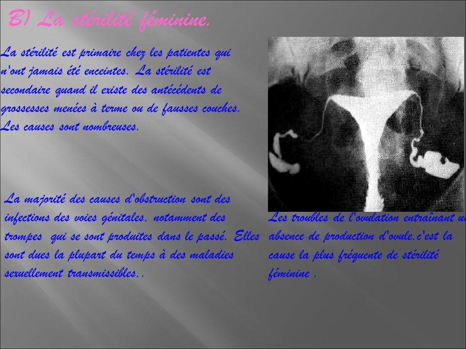 a) L insémination artificielle,.