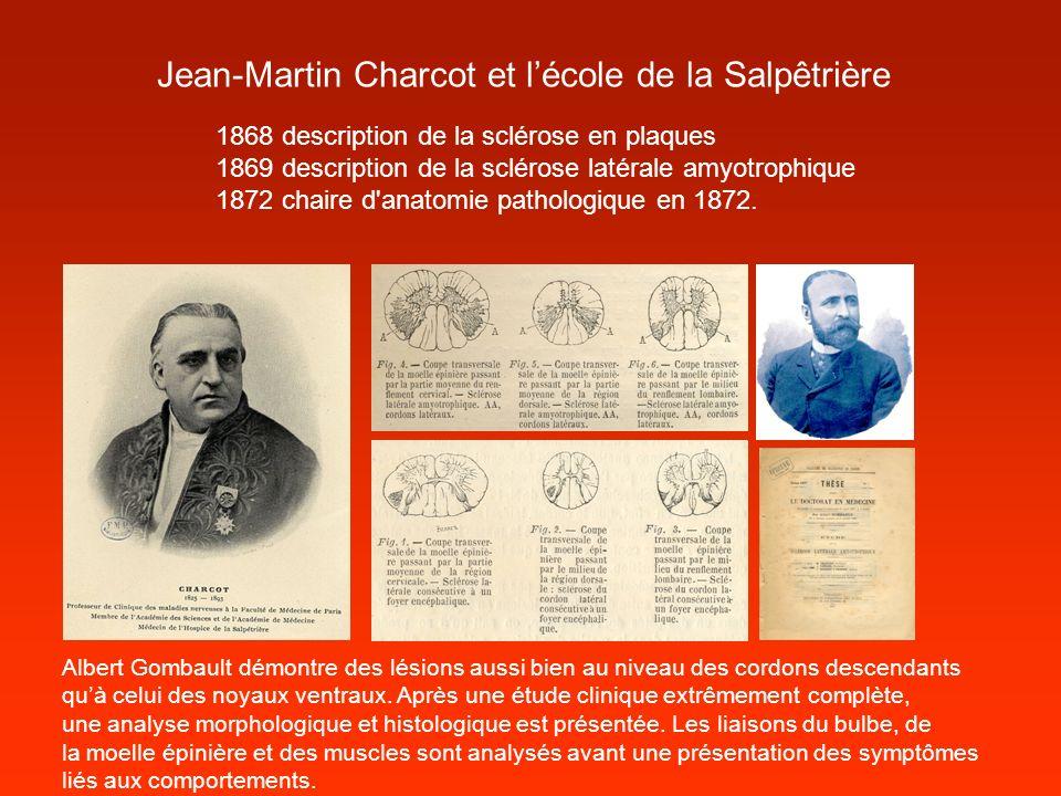 Jean-Martin Charcot et lécole de la Salpêtrière 1868 description de la sclérose en plaques 1869 description de la sclérose latérale amyotrophique 1872