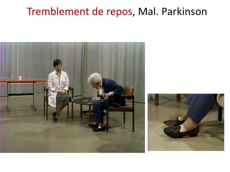 Tremblement de repos, Mal. Parkinson