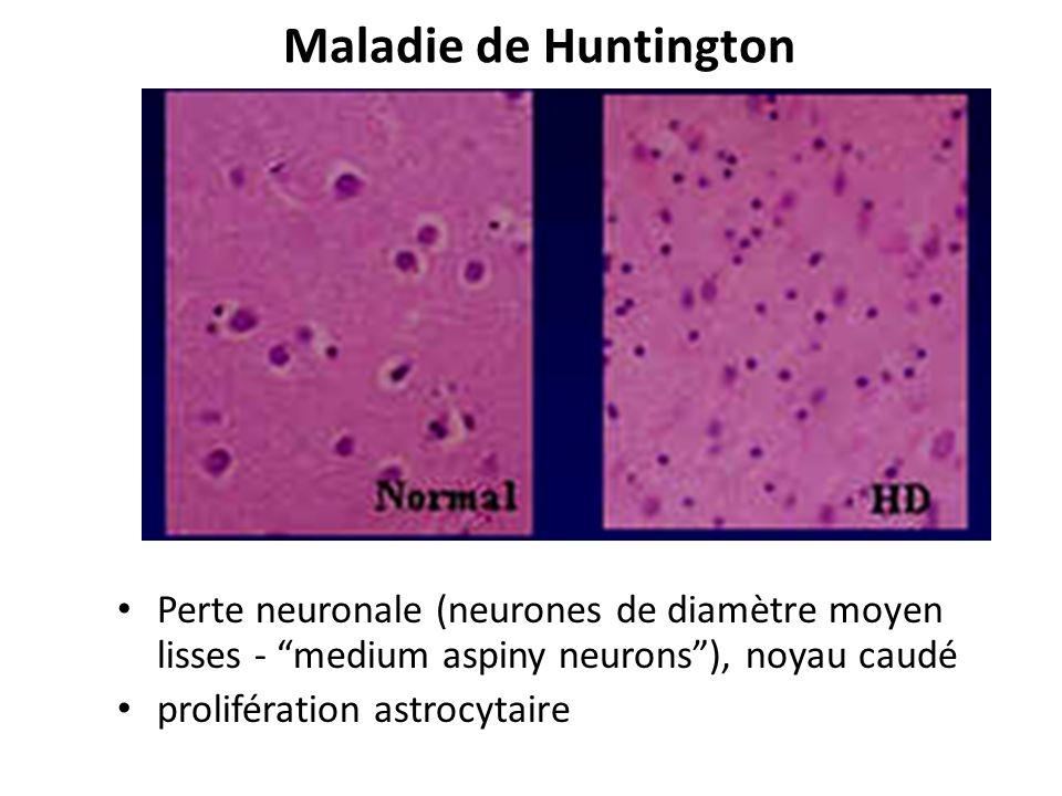 Maladie de Huntington Perte neuronale (neurones de diamètre moyen lisses - medium aspiny neurons), noyau caudé prolifération astrocytaire