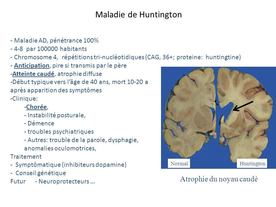 - Maladie AD, pénétrance 100% - 4-8 par 100000 habitants - Chromosome 4, répétitions tri-nucléotidiques (CAG, 36+; proteine: huntingtine) - Anticipati
