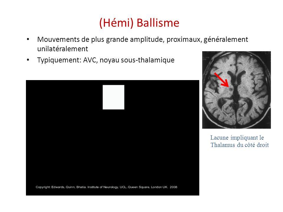 (Hémi) Ballisme Mouvements de plus grande amplitude, proximaux, généralement unilatéralement Typiquement: AVC, noyau sous-thalamique Lacune impliquant