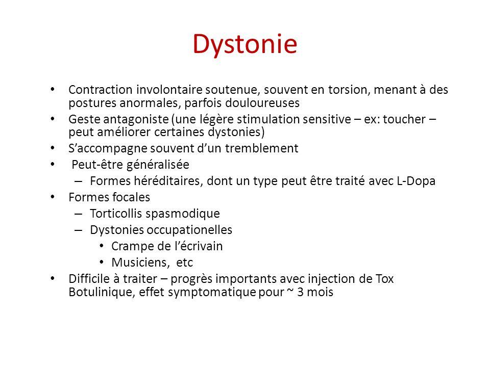 Dystonie Contraction involontaire soutenue, souvent en torsion, menant à des postures anormales, parfois douloureuses Geste antagoniste (une légère st