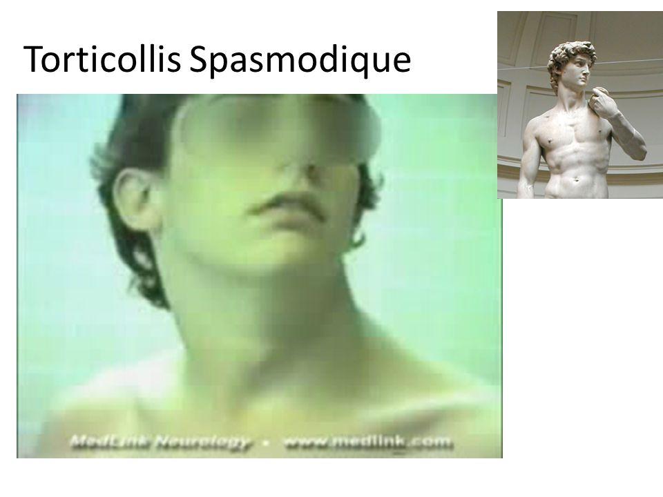 Torticollis Spasmodique