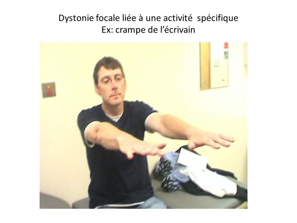 Dystonie focale liée à une activité spécifique Ex: crampe de lécrivain