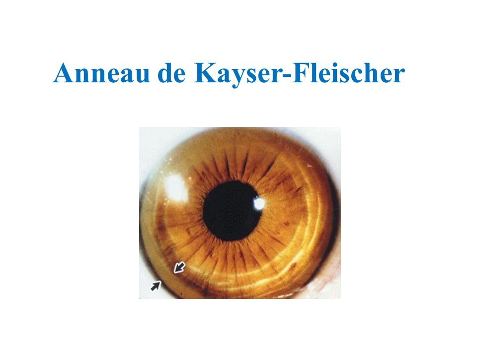 Anneau de Kayser-Fleischer