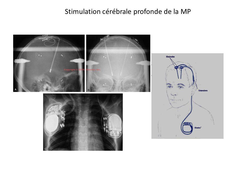 Stimulation cérébrale profonde de la MP