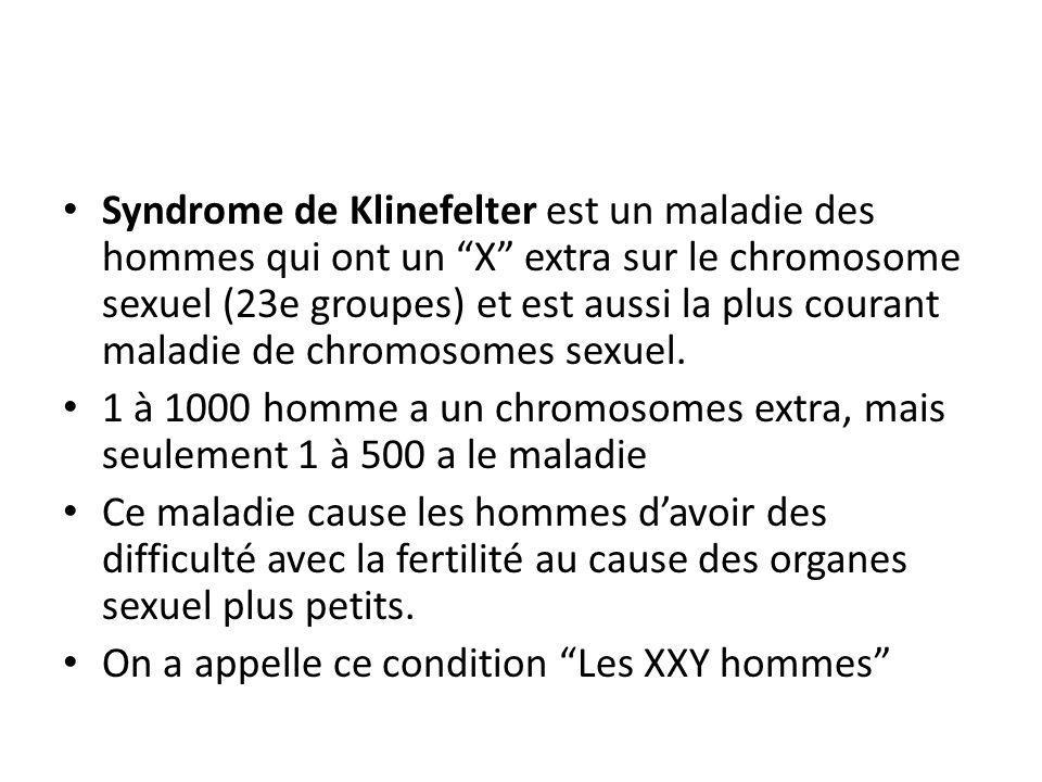 Syndrome de Klinefelter est un maladie des hommes qui ont un X extra sur le chromosome sexuel (23e groupes) et est aussi la plus courant maladie de ch