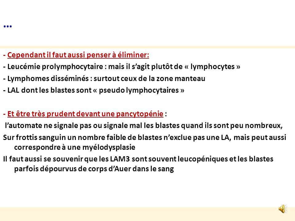 Diagnostic cytologique avec lhémogramme = situation habituelle du biologiste de laboratoire privé Lhémogramme dune LA montre le plus souvent: -Anémie