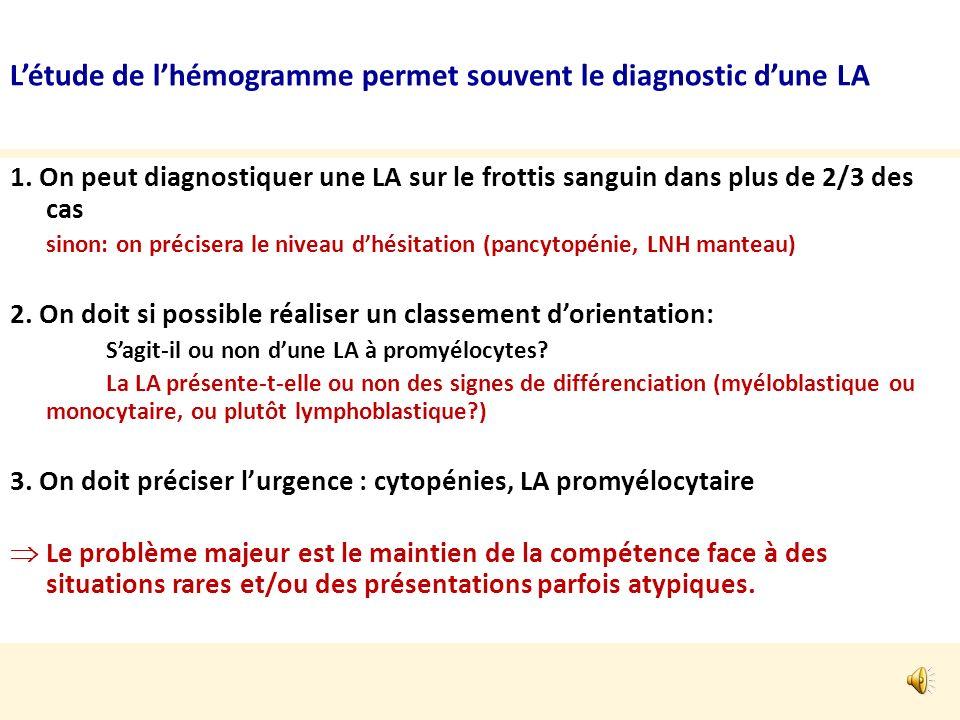 … - Cependant il faut aussi penser à éliminer: - Leucémie prolymphocytaire : mais il sagit plutôt de « lymphocytes » - Lymphomes disséminés : surtout